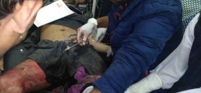 Man shot at in Shopian, injured