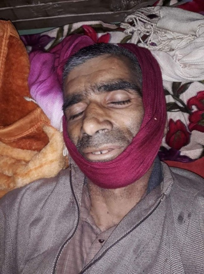 Injured in clashes last month, Shopian man succumbs