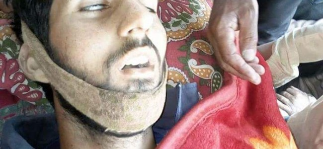 Kulgam Gunfight: Another Civilian who was injured in Clashes Succumbed toll reaches two