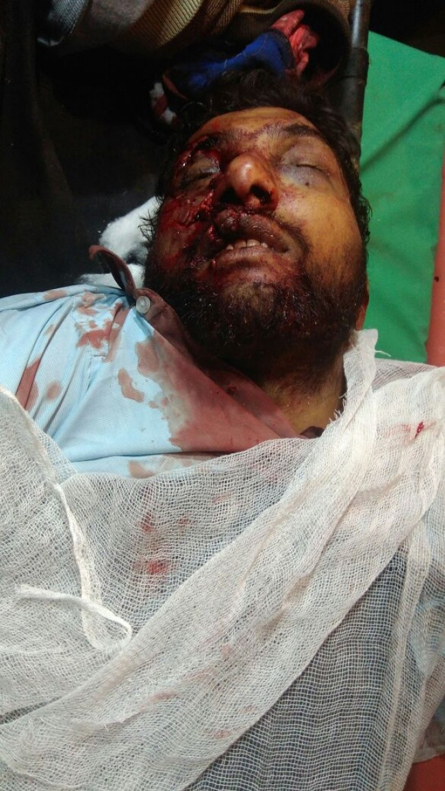 Accident at Hamray Pattan resulted in death wo two persons
